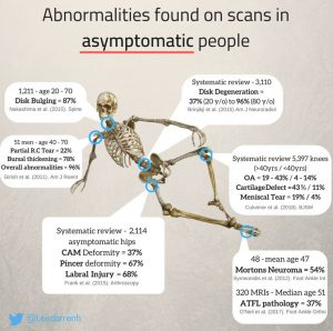 asymptomatic scans